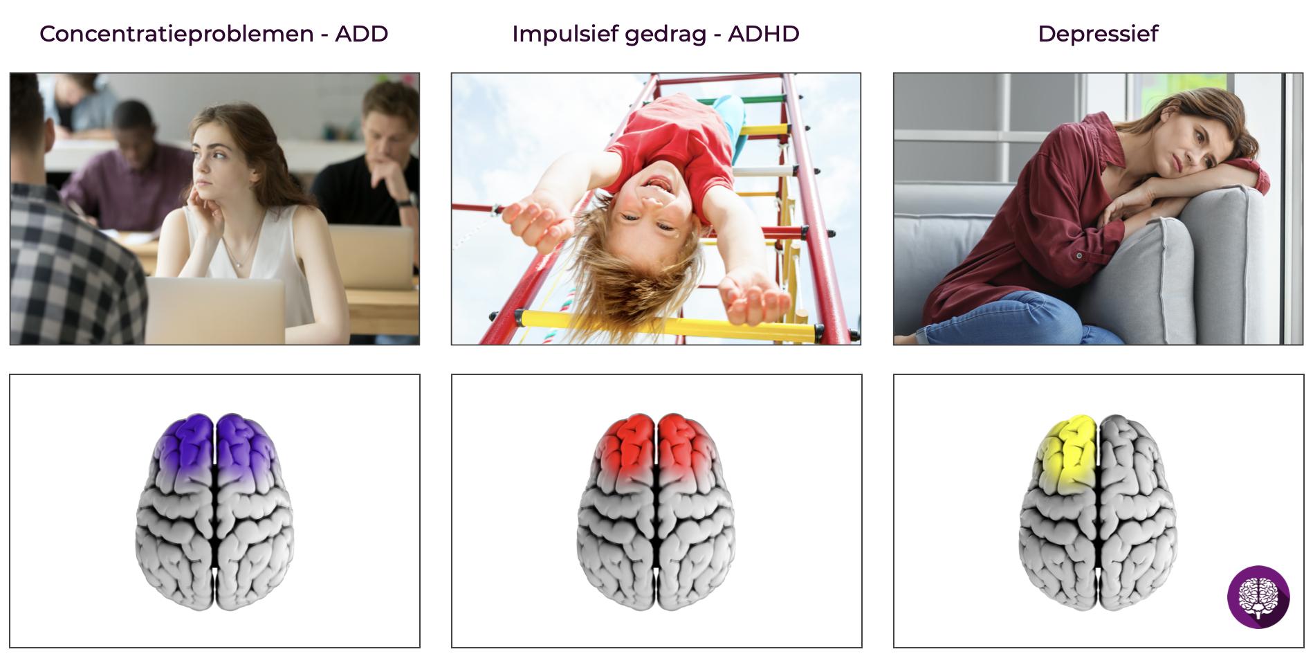 Diverse klachten inzichtelijk maken met een breinmeting. Vervolgens kun je een persoonlijk trainingsprotocol instellen voor de neurofeedbacktraining.