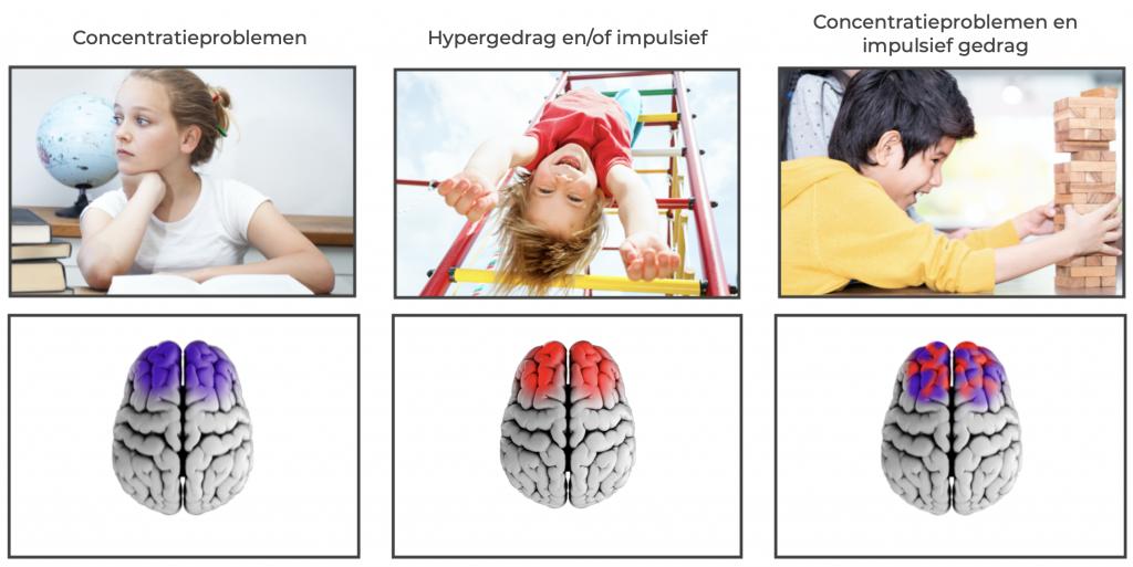 Breintoestand bepaalt gedrag